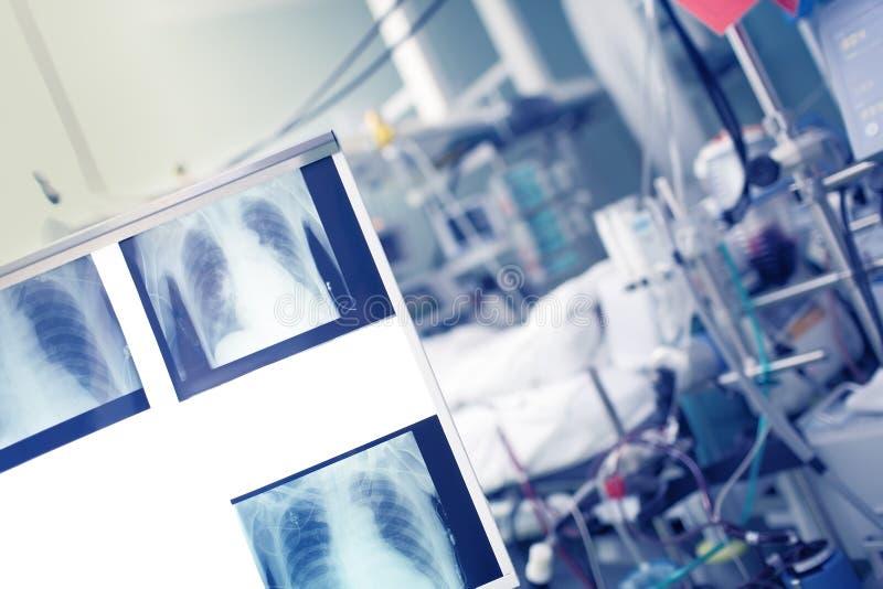Imagens radiológicas do controle no negatoscope no wa paciente fotografia de stock