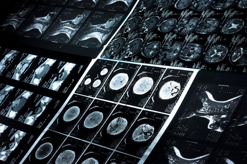 Images de balayage de CT image stock