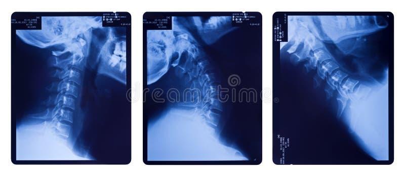 Images de rayon X de l'épine de cou photo stock