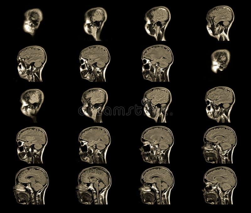 imaging a risonanza magnetica, testa di MRT di RMI fotografia stock libera da diritti