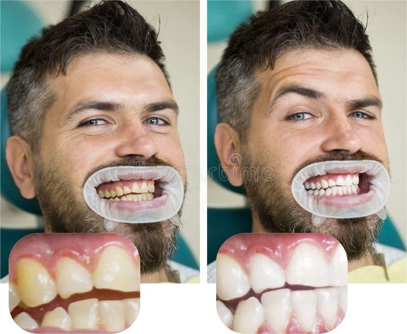 Imbiancando dopo e prima Uomo in sedia dentaria Dentista che prepara per l'imbiancatura dentaria La gente della medicina di salut immagine stock