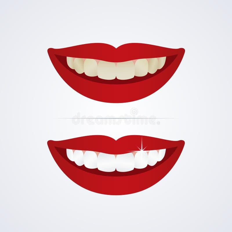 Imbiancatura dell'illustrazione dei denti illustrazione di stock