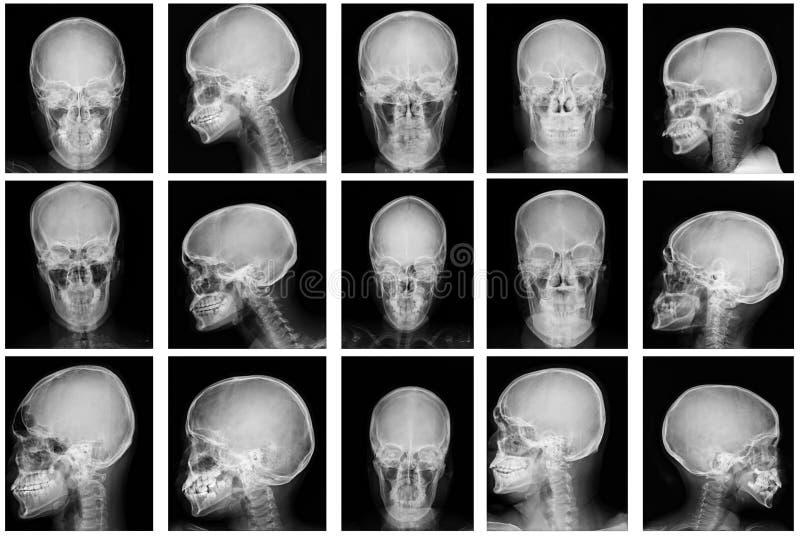 Immagine dei raggi x del cranio della raccolta immagine stock