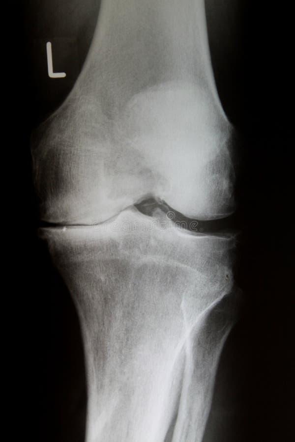 Immagine dei raggi x del giunto di ginocchio con l'artrosi avanzata Gonarthrose immagini stock libere da diritti