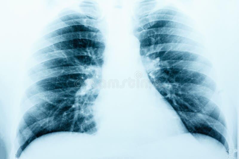 Immagine dei raggi x del RMI sano umano del petto immagine stock libera da diritti