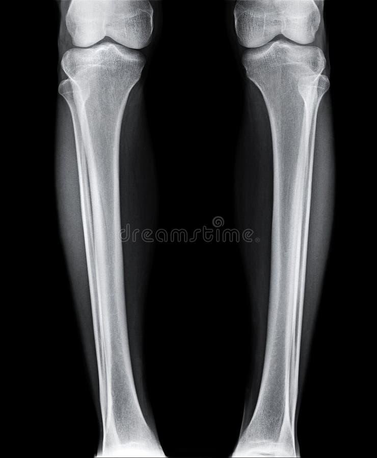 Immagine dei raggi x della gamba immagine stock libera da diritti
