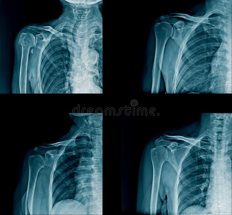 Immagine dei raggi x della spalla della raccolta fotografia stock libera da diritti