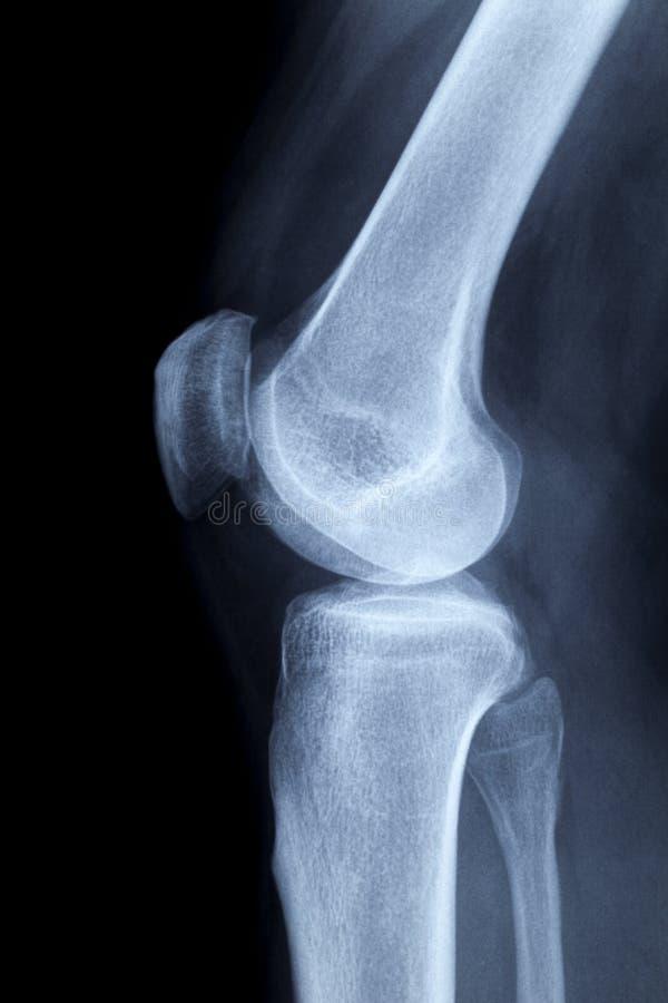 Immagine dei raggi X di un ginocchio umano lateralmente immagine stock