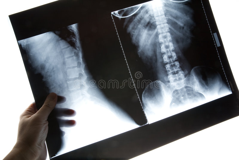 Immagine dei raggi X immagine stock libera da diritti