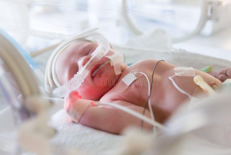 Immagine del bambino prematuro in incubatrice immagini stock libere da diritti