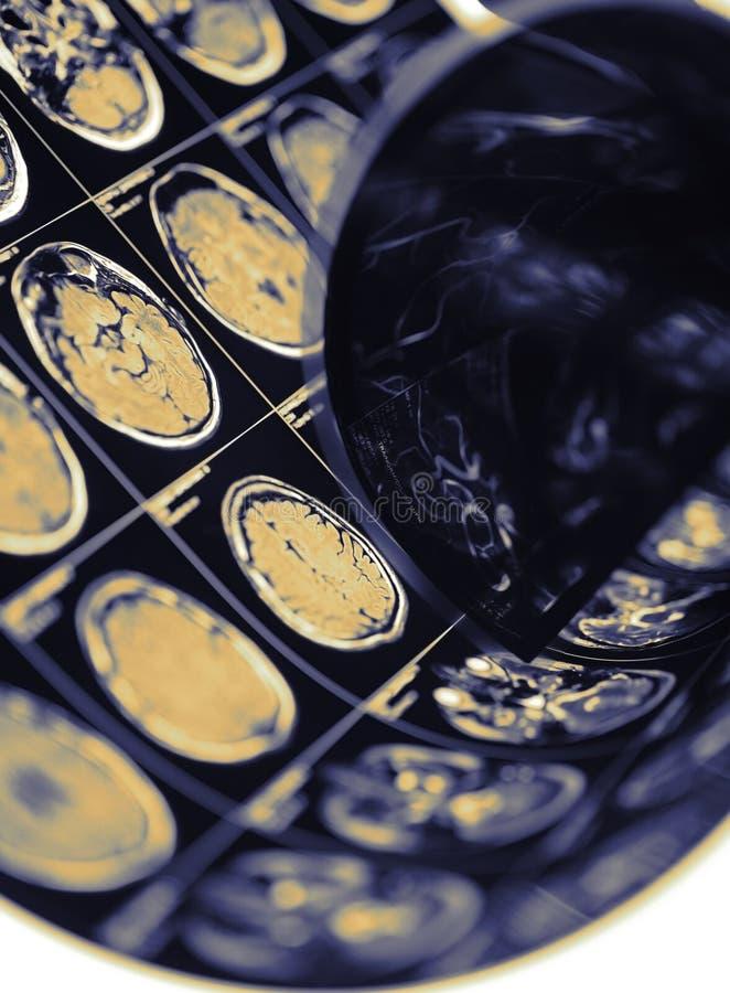Immagine di CT di cervello umano come concetto di ispezione diagnostica fotografie stock libere da diritti