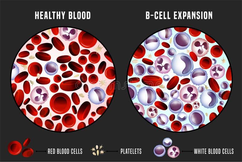 Immagine di Infographic di leucemia illustrazione vettoriale