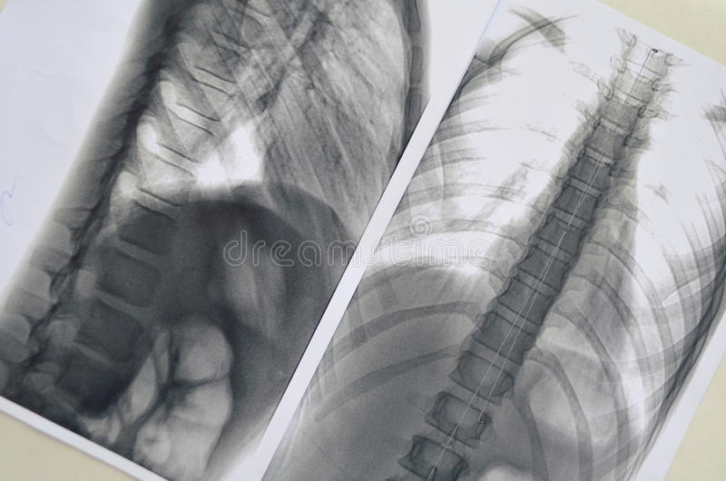 Immagine di Rengen della spina dorsale fotografie stock