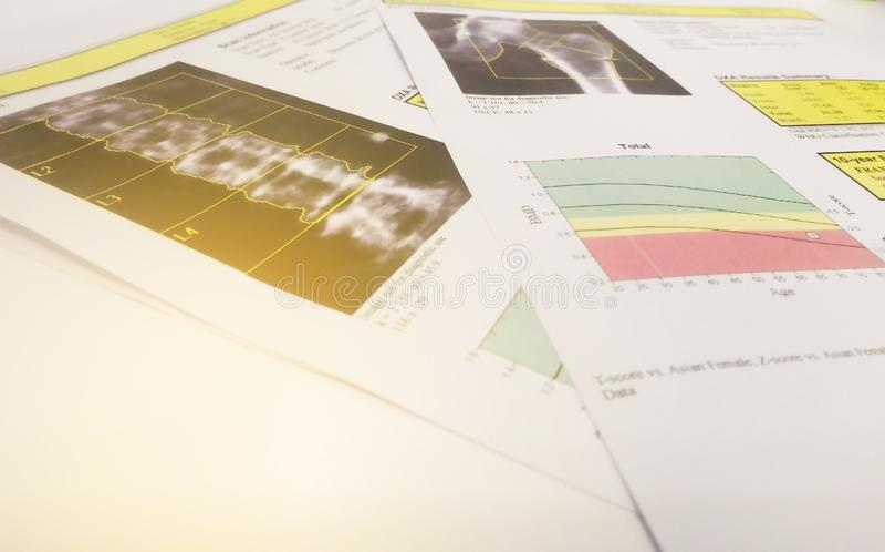 Immagine morbida e confusa: osteoporosi di risultato dell'anca e di lumbarspine di densità ossea immagini stock