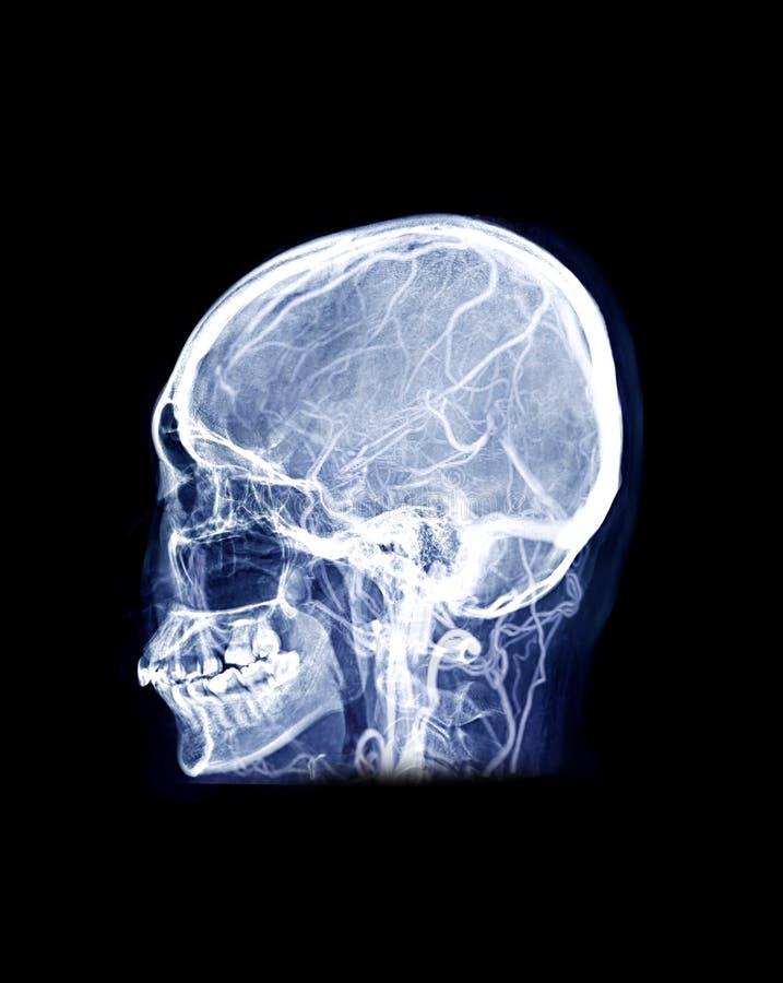 Immagine a raggi X del cranio dell'uomo Mescolare laterale MRV Immagine del cervello che mostra i seni venosi del cervello fotografie stock libere da diritti