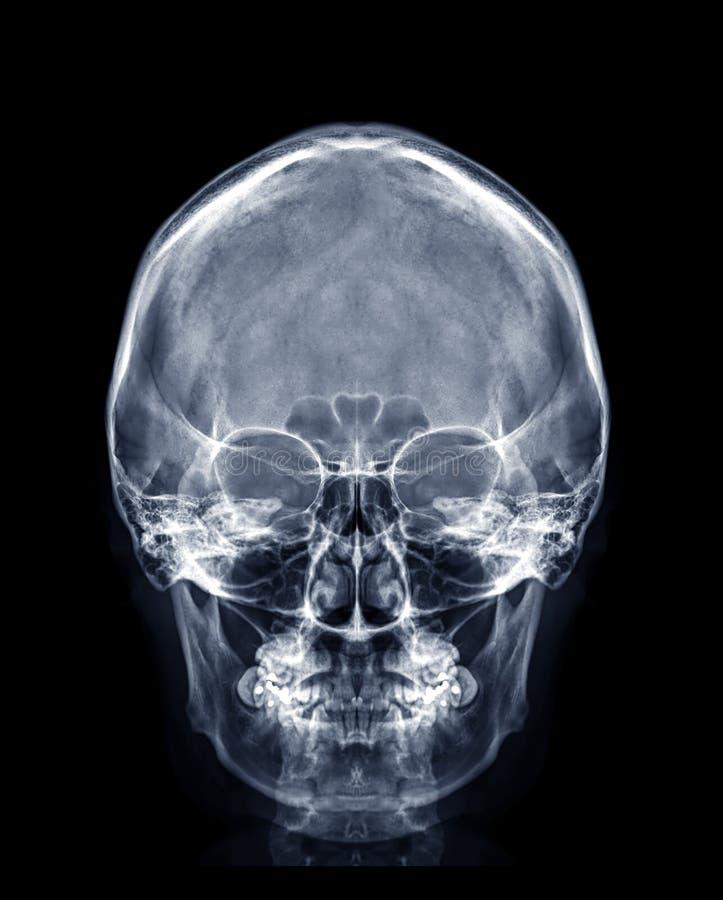 Immagine a raggi X del cranio della vista del cranio umano o della vista anteriore immagine stock libera da diritti