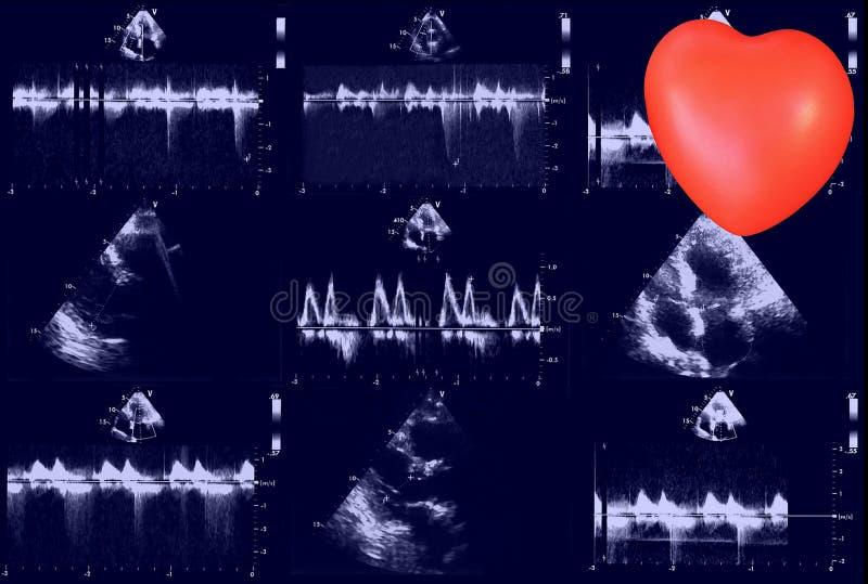 Immagini cardiache di ultrasuono e piccolo cuore Eco di doppler fotografia stock libera da diritti