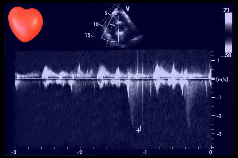 Immagini cardiache di ultrasuono e piccolo cuore Eco di doppler immagini stock libere da diritti