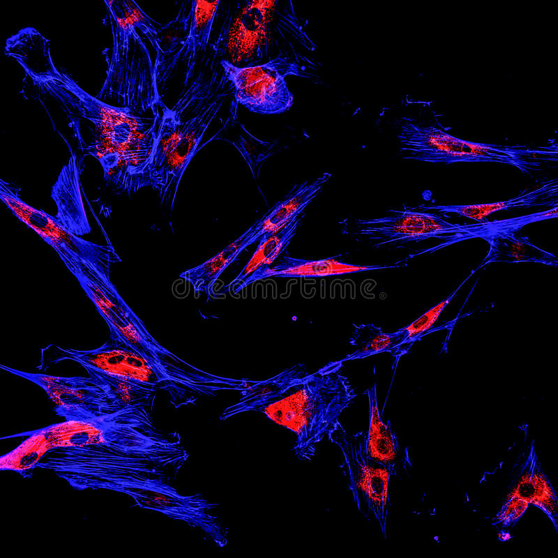 Immunofluorescence confocal imaging of a melanoma cancer cell line royalty free stock photo