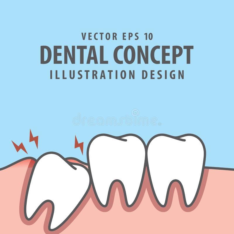 Impacted tooth inside under inflammation gum illustration vector. On blue background. Dental concept vector illustration