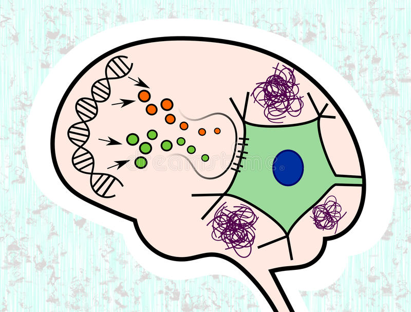 Impaired signalling in Alzheimer's Disease royalty free illustration