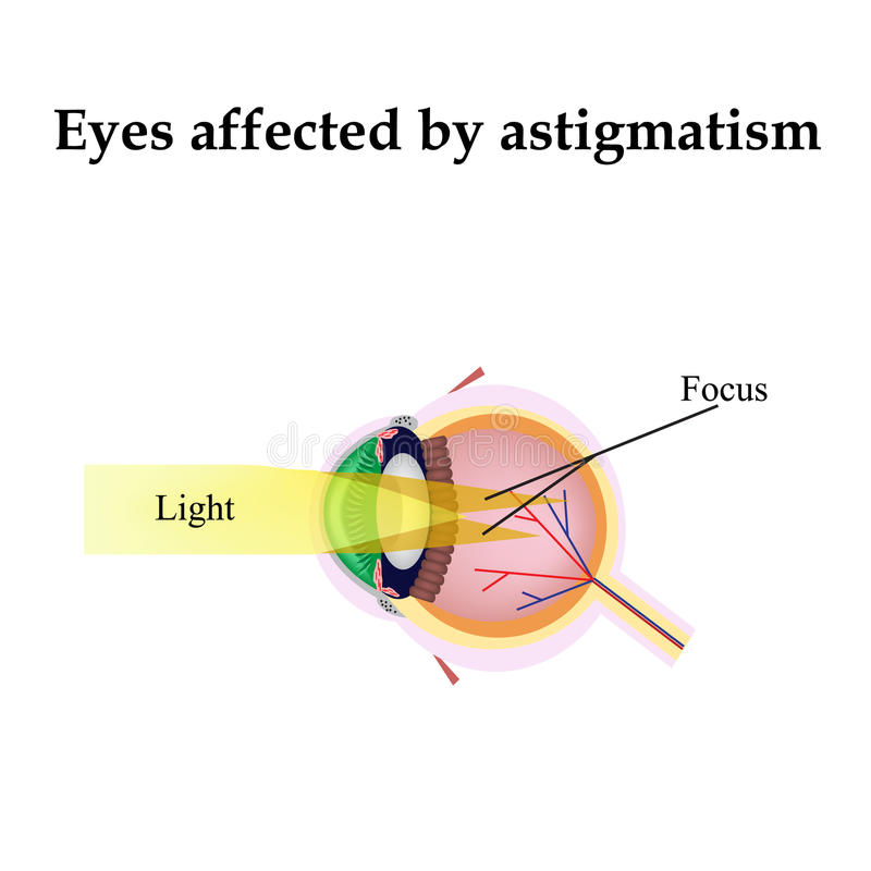 Impaired vision with astigmatism. As astigmatism stock illustration