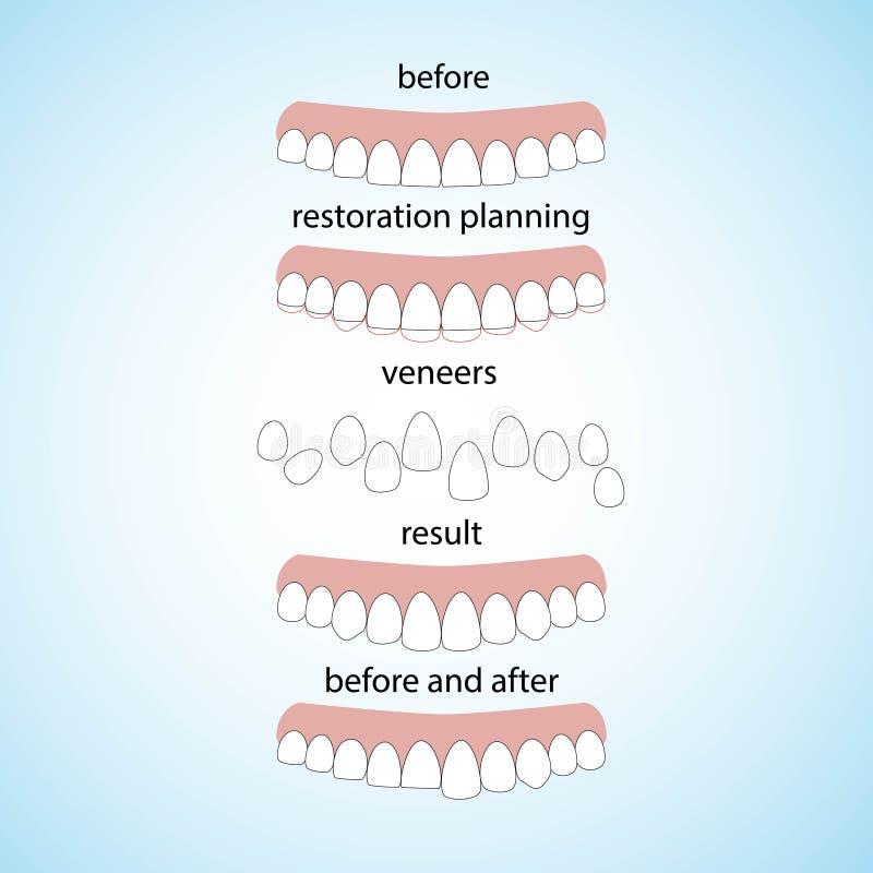 Impiallaccia l'odontoiatria, grande progettazione per tutti gli scopi royalty illustrazione gratis