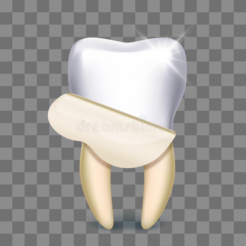 Impiallacciatura del dente che imbianca odontotecnico royalty illustrazione gratis