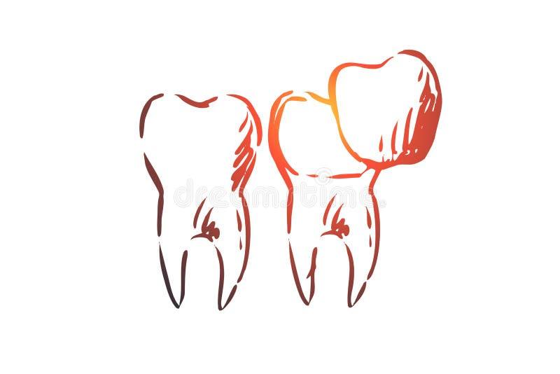 Impiallacciatura, dentaria, cura, odontoiatria, imbiancante concetto Vettore isolato disegnato a mano illustrazione vettoriale
