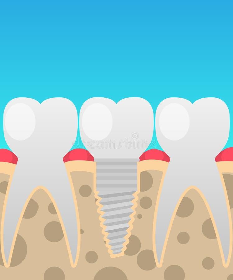 Impianti dentari, sostituzione del dente, illustrazione di vettore in uno stile piano del fumetto royalty illustrazione gratis