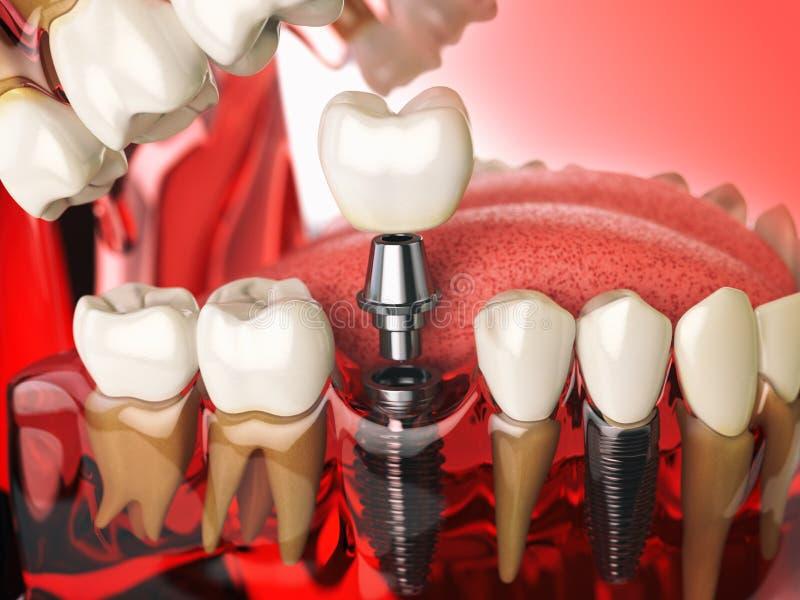 Impianto del dente nei denti, nelle gomme e nei denturas umani di modello Denta royalty illustrazione gratis