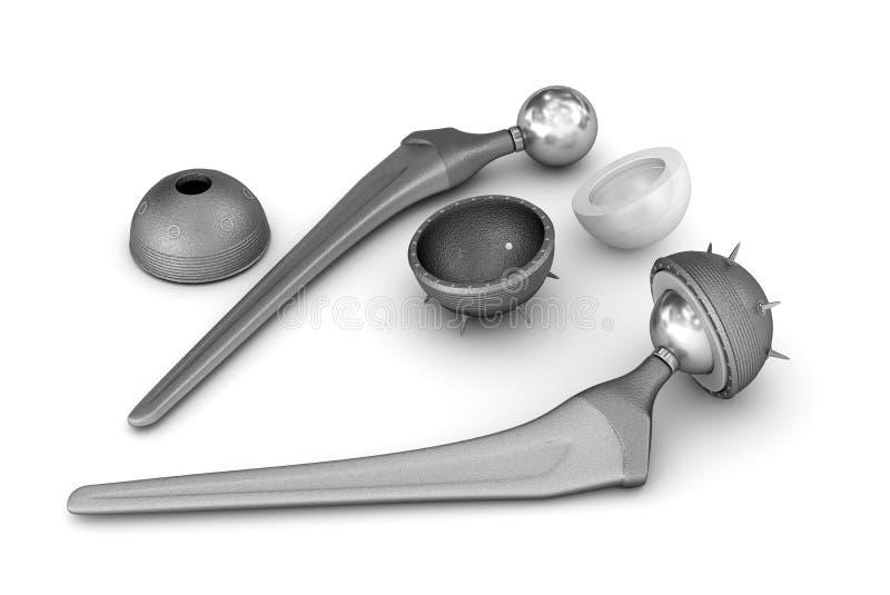 Impianto della sostituzione dell'anca isolato su bianco illustrazione di stock