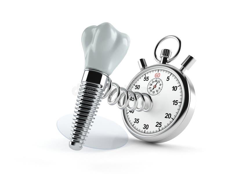 Impianto dentario con il cronometro illustrazione di stock