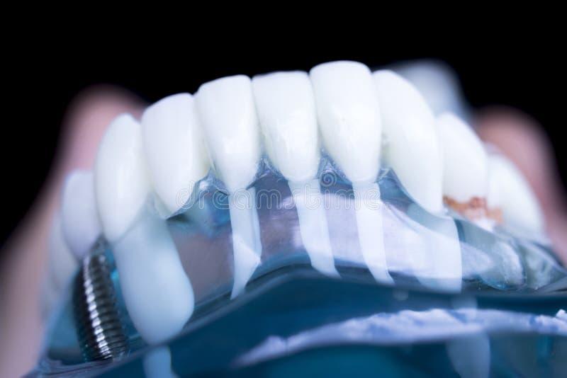 Impianto dentario dei denti del dentista immagini stock libere da diritti