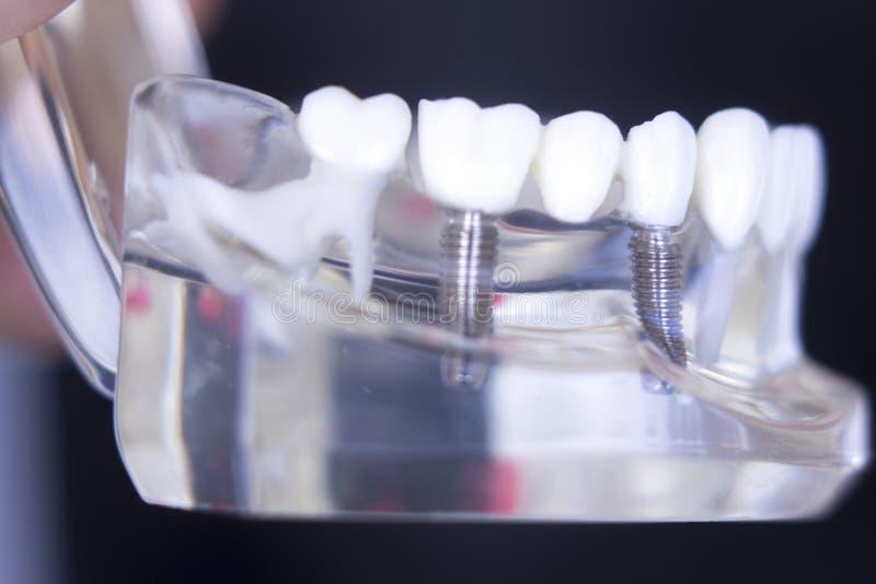Impianto dentario del dente di Dentsts fotografia stock