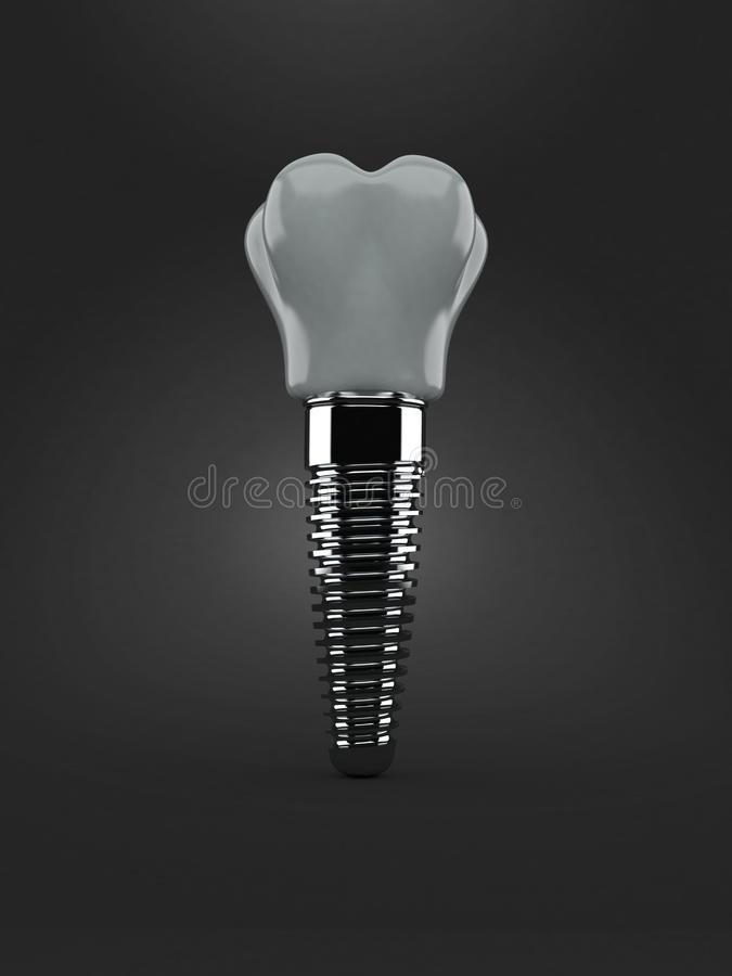 Impianto dentario isolato royalty illustrazione gratis
