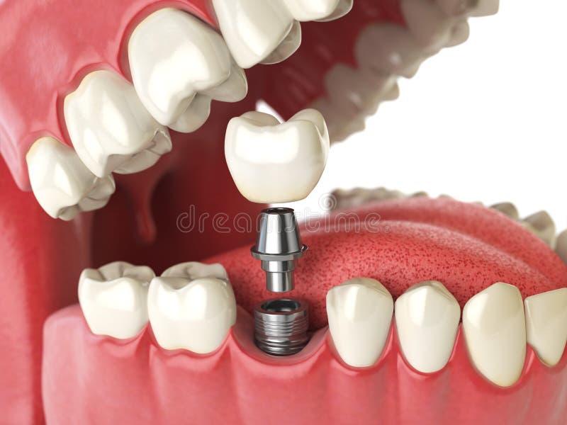 Impianto umano del dente Concetto dentale Denti o protesi dentarie umani illustrazione vettoriale