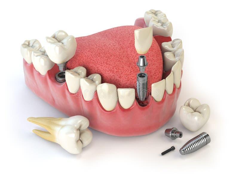 Impianto umano del dente Concetto dentale Denti o protesi dentarie umani illustrazione di stock