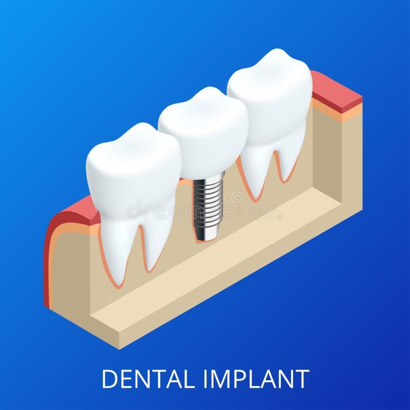 Impianto umano del dente isometrico Concetto dentale Denti o protesi dentarie umani illustrazione 3D isolata Vettore realistico illustrazione di stock