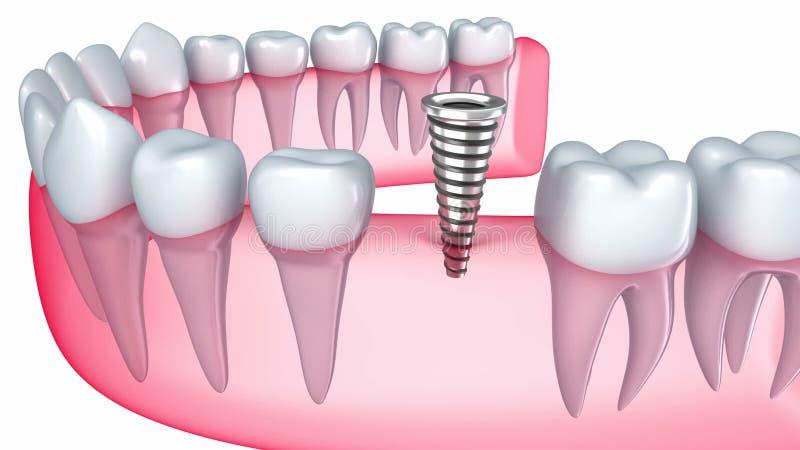 Implant врезан в камеди бесплатная иллюстрация