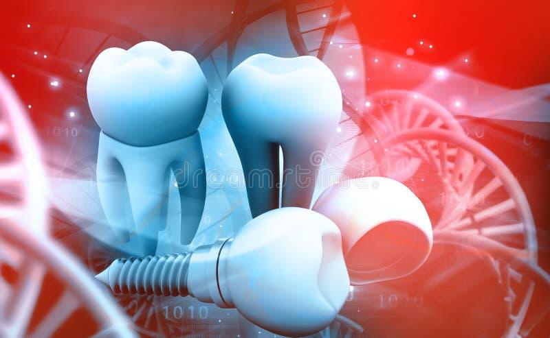 Implant зуба человеческий иллюстрация штока