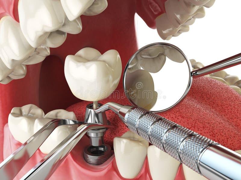 Implant зуба человеческий Зубоврачебная концепция вживления Человеческие зубы или бесплатная иллюстрация