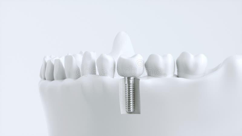 Implant зуба человеческий - перевод 3D стоковые изображения rf