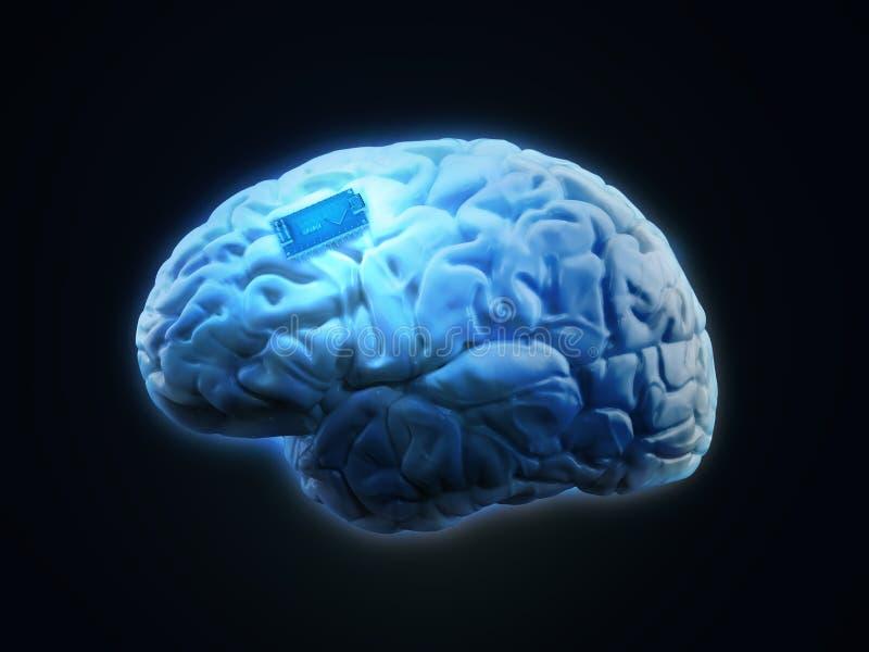 Implant человеческого мозга иллюстрация вектора