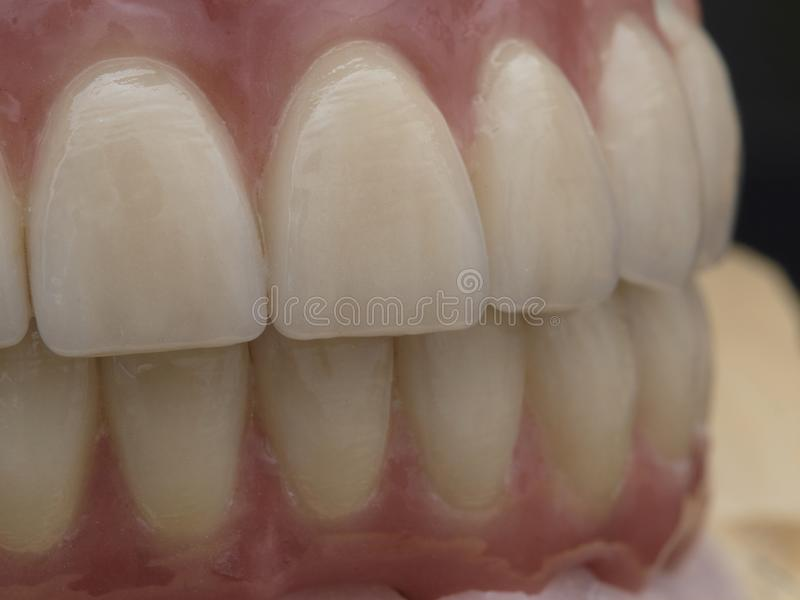 implant photos stock