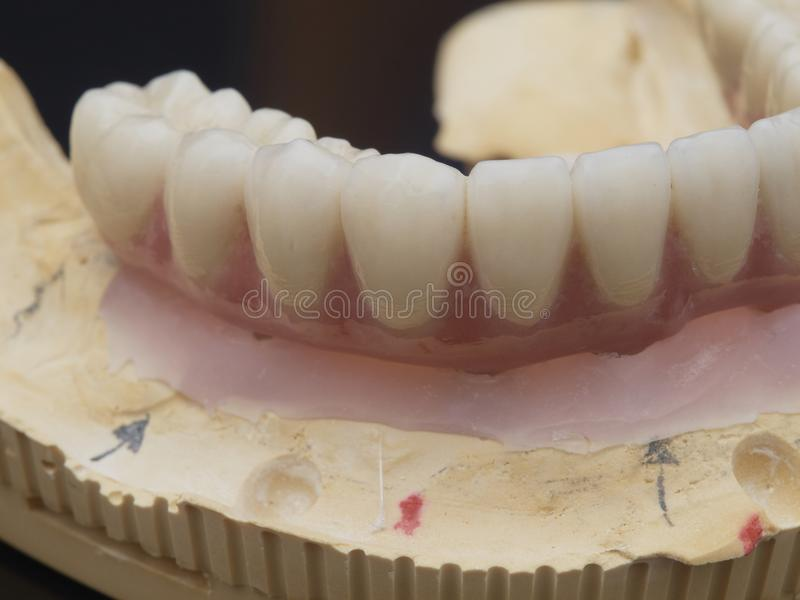 implant images stock