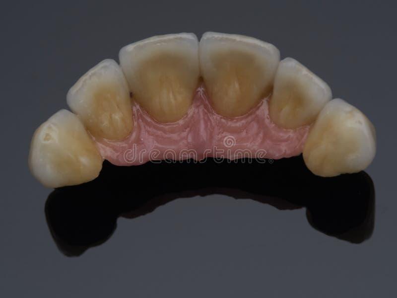 implant fotografia stock