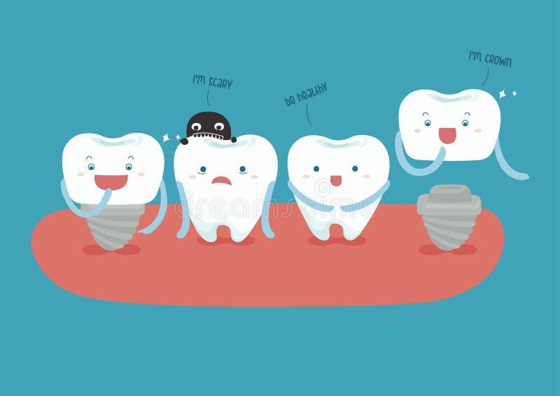 Implant dentaire illustration stock