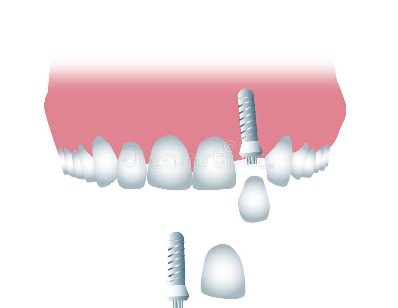 Download Implant dentaire illustration stock. Illustration du dentistry - 76086521