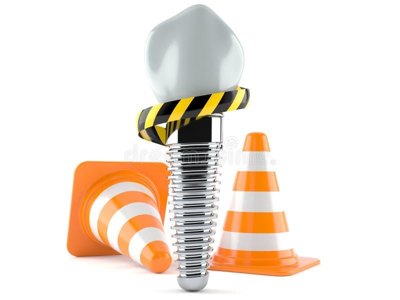 Implant dentaire avec des cônes du trafic illustration de vecteur